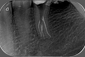 endodoncia-07