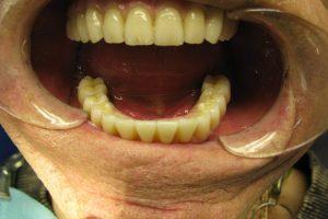 implantacia-03