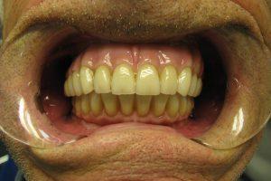 implantacia-05
