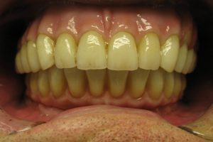 implantacia-06