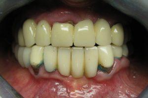 implantaty-02